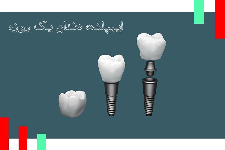 ایمپلنت دندان یک روزه