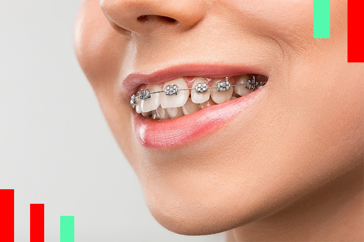 سن مناسب ارتودنسی دندان