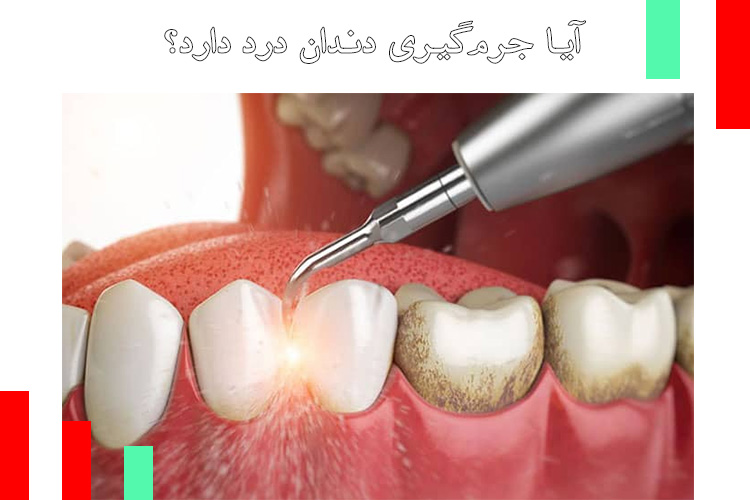 آیا جرمگیری دندان درد دارد؟