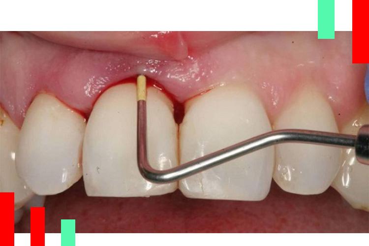 جرم-گیری-دندان-ها