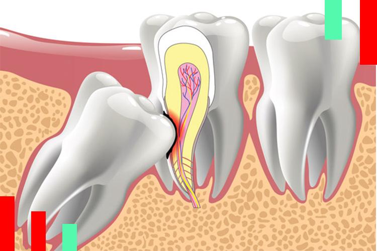 خارج-سازی-دندان-عقل