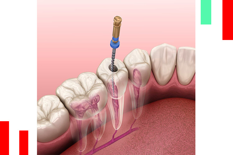 عصب-کشی-دندان