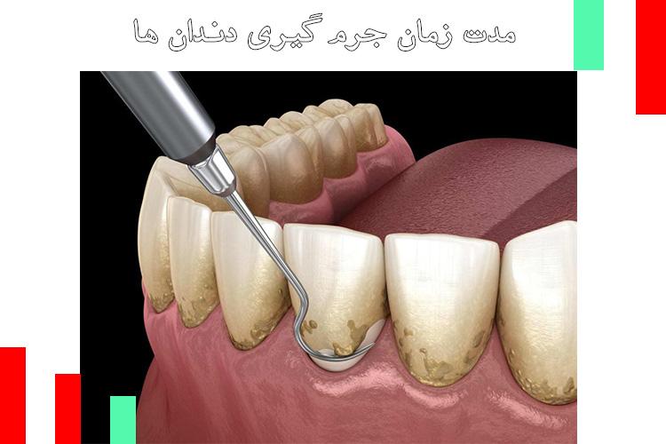 مدت-زمان-جرم-گیری-دندان-ها