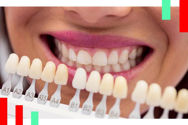 رنگ لمینت دندان
