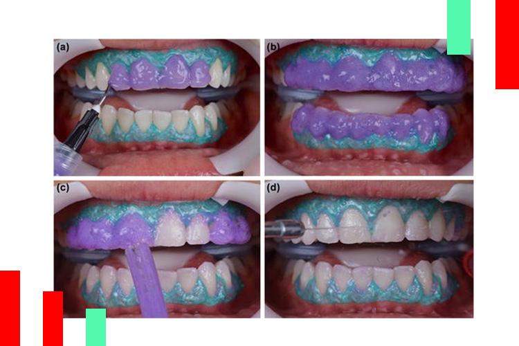 سفید-کردن-دندان-ها